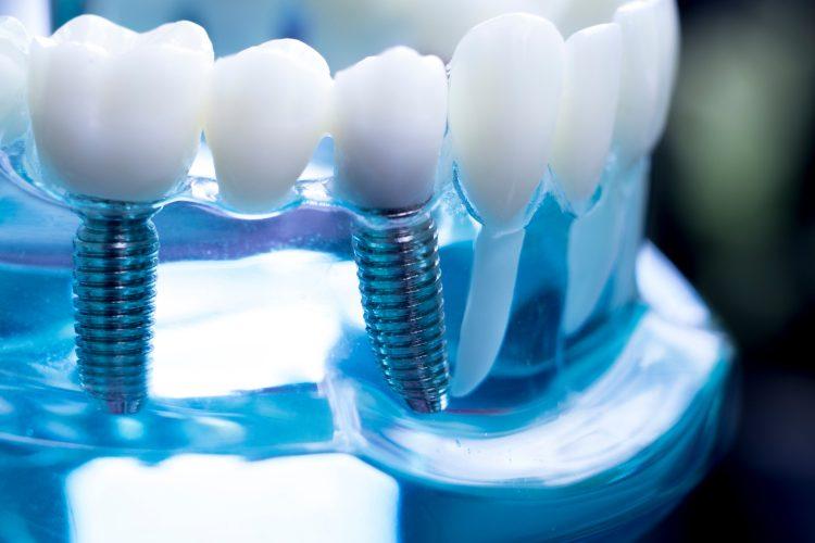 prace protetyczne na implantach