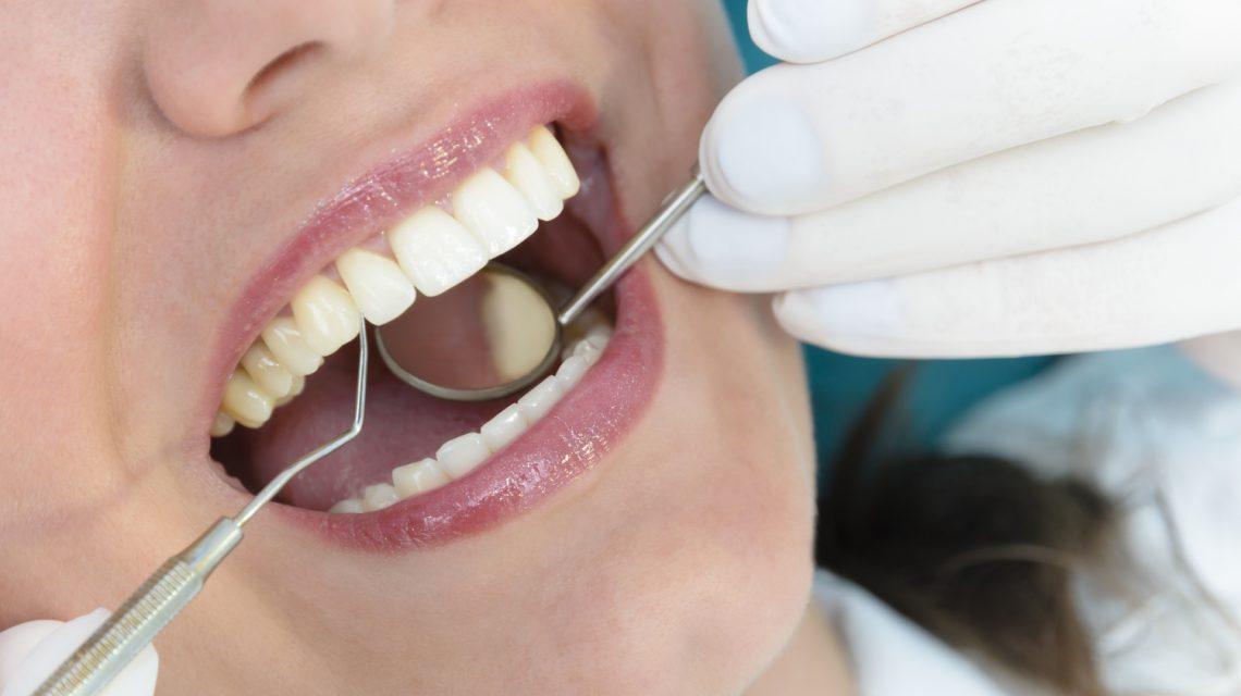 jak rozpoznać i leczyć parodontozę