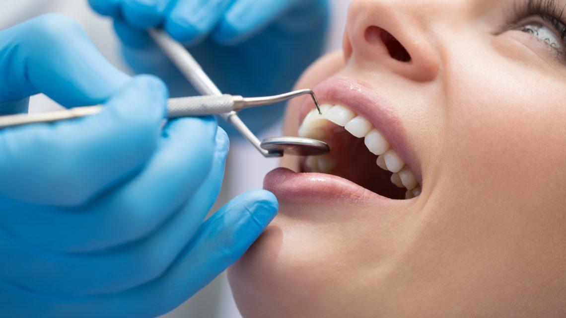 ortodoncja bezekstrakcyjna