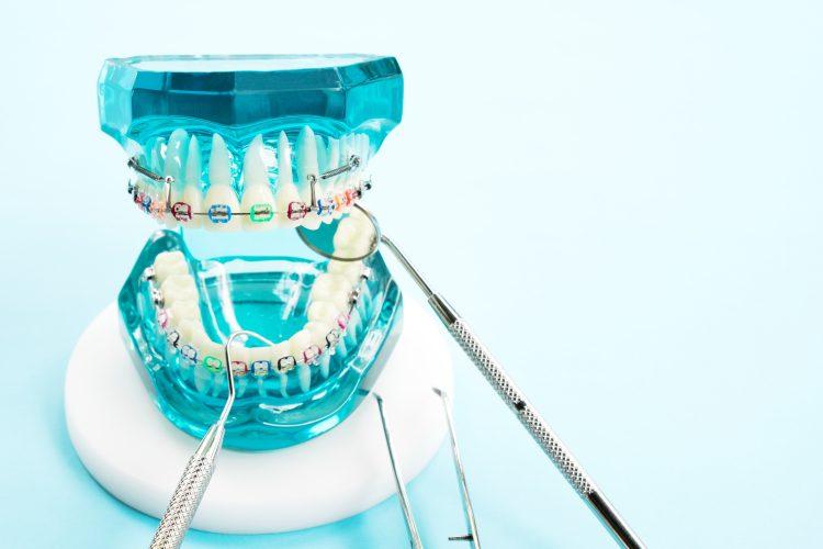 materiały kościozastępczne w chirirgii stomatologicznej