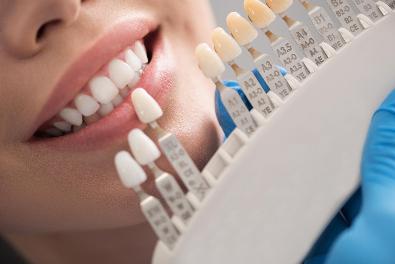 korony protetyczne, wizyta u dentysty